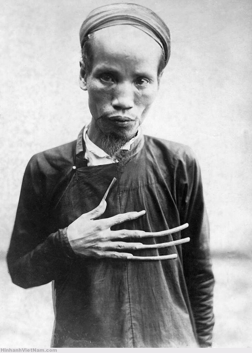 Đông Dương thập niên 1920 - Một nho sĩ Annam với móng tay dài, niềm tự hào và thích thú của ông ta